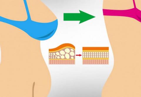 Кортизоловый живот: Как избавиться от стрессового жира