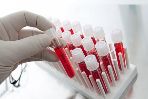 9 показателей крови, которые…