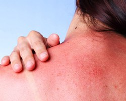 Большие дозы витамина D помогают при солнечных ожогах