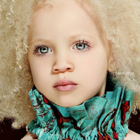 Ава Кларк – 8-летняя девочка-альбинос, ставшая юной афроамериканской моделью