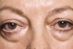 Причины, симптомы, как убрать отеки под глазами?