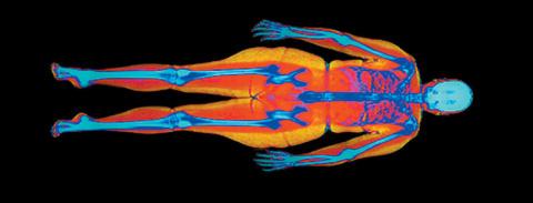 Саркопеническое ожирение: жир вместо мышц