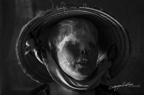 Нечеловеческая жестокость: как во Вьетнаме обливают кислотой людей, чтобы свести счёты