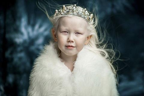 Белоснежка из Якутии: 8-летн…
