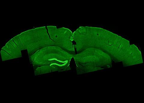 Разработан метод неинвазивной глубокой стимуляции мозга
