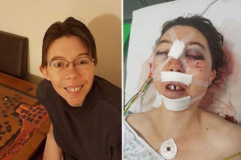 Пластические хирурги восстановили «растоптанное всмятку» лицо женщины-врача