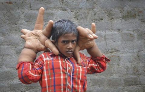 Индийский мальчик с гигантскими руками