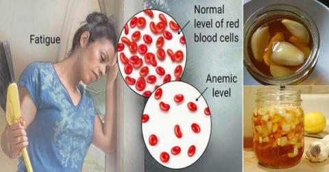 Узнайте, как лечить анемию с…