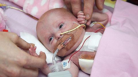 Британские врачи спасли малы…