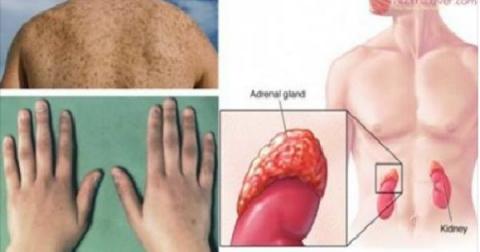 Предупреждающие признаки надпочечниковой недостаточности и естественные методы лечения