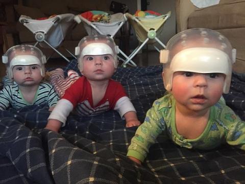 Один шанс на 500 триллионов: почему эти тройняшки носят специальные шлемы