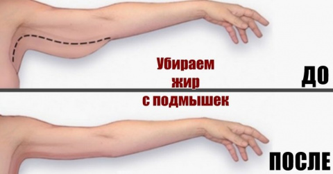 3 совета, позволяющих надолго избавиться от свисающего жира на руках