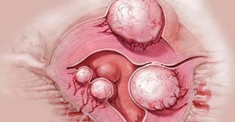 Лекарство от кисты и миомы