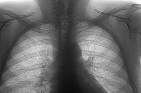 О туберкулёзе и неумных хулиганах