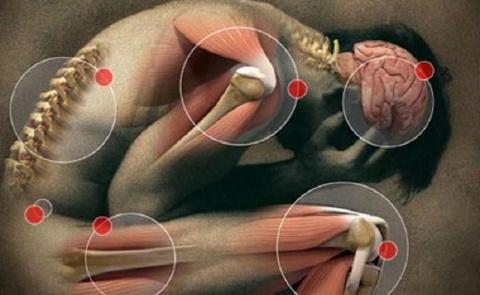 Мышечные зажимы шеи и спины:…