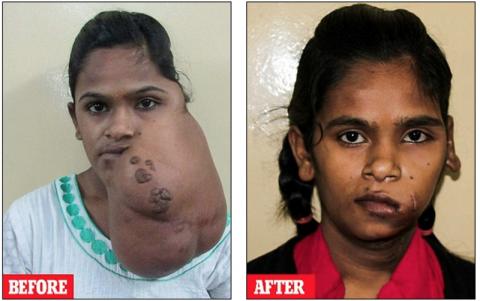 Индийская девочка улыбнулась…