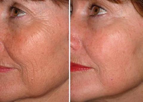 Яичный белок для лица: 7 шагов к совершенству!