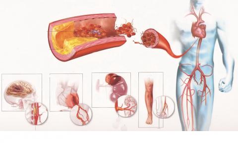 Атеросклероз – «чума» современности