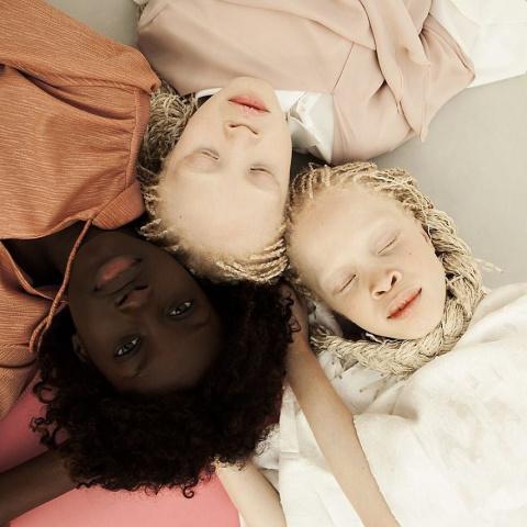 Потому что альбиносы могут