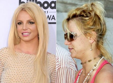 Прыщи, морщины и акне — вот что на самом деле скрывается под макияжем у голливудских звезд!
