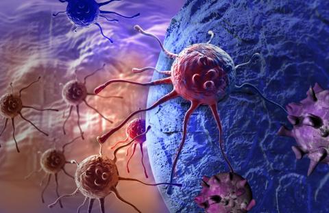 Онколог: 5 вещей, которые я бы сделал, если бы сегодня мне поставили диагноз «рак»