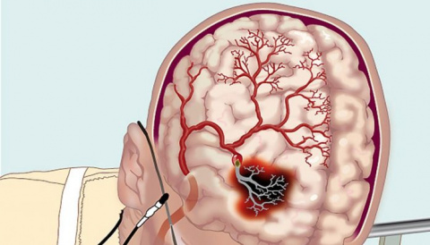 Как улучшить мозговое кровоо…
