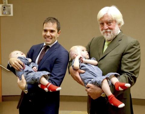 Первые фотографии сиамских близнецов после разделения