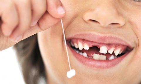 Врачи советуют сохранять молочные зубы детей. И вот зачем...