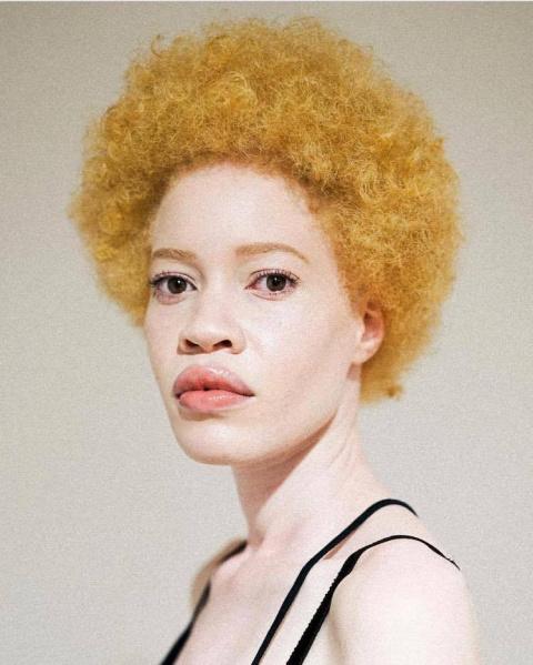 Афроамериканская модель-альбиноска Диандра Форрест ломает традиционные представления о красоте