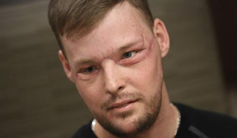 Результаты пересадки лица, сделанной парню после того, как он выстрелил себе в лицо
