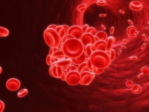Тромбоз: простые правила предупреждения заболевания