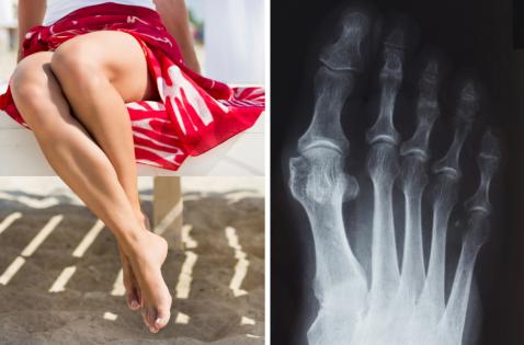 Жизнь без «шишек»: почему появляется косточка на большом пальце ноги, и как ее удалить?