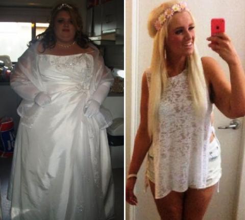 Испугавшись страшного диагноза, она похудела на 100 кг! Но теперь есть проблема с кожей...