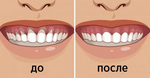 Вы заметили оголение шейки или корня зуба? Немедленно начинайте лечение — 6 натуральных рецептов
