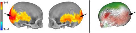 Неандертальское эхо в наших головах