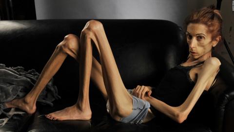 «Я пыталась, но анорексия победила меня…» Мать этой погибшей девочки просит других родителей быть внимательнее