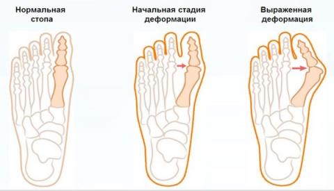 Растущие косточки на ногах -…