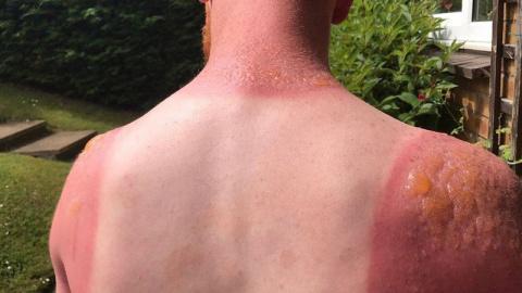 Что делать при солнечном ожо…