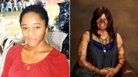 Она выжила при крушении самолета и перенесла 100 операций...