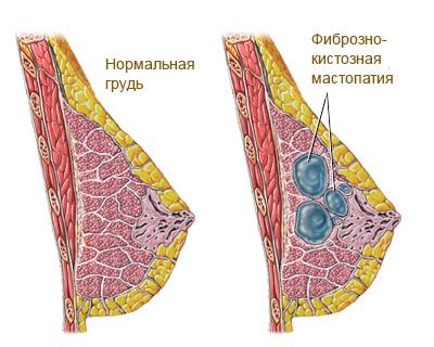 Фиброзно-кистозная мастопатия. Лечение народными средствами.