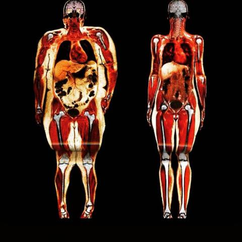 Почему худые не толстеют