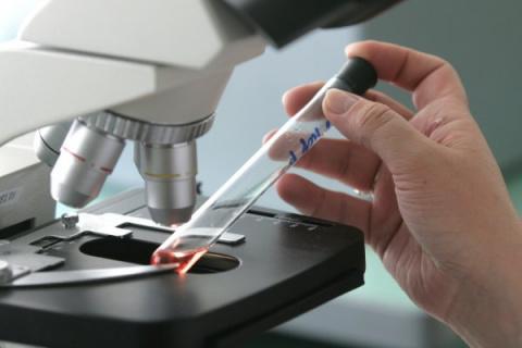 Роспотребнадзор предупредил о вспышке чумы на северо-западе Китая