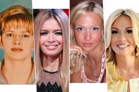 Тогда и сейчас: Брежнева и другие звезды, которых мы не узнаем на старых фото