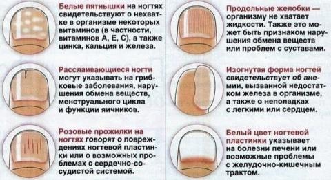 Что говорят ногти о нашем здоровье