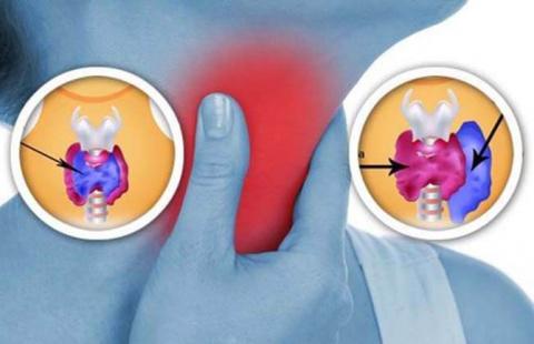 Щитовидная железа: 8 вещей в…