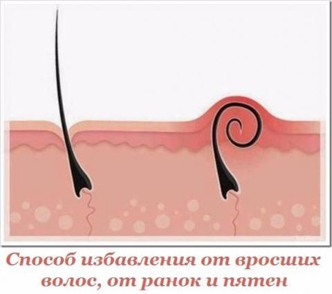 Способ избавления от вросших волос, от ранок и пятен, которые остаются после.
