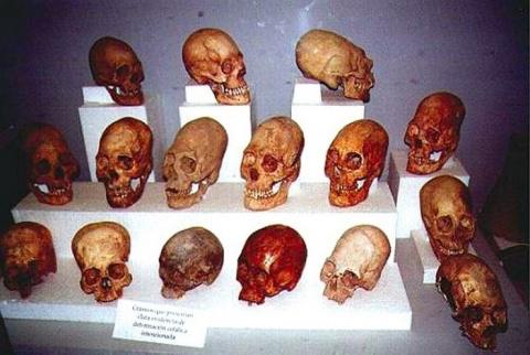 Эта древняя традиция наших предков повергает в шок даже ученых! Зачем только они это делали...