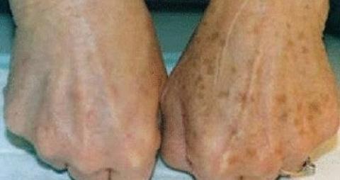 Пигментные пятна на коже