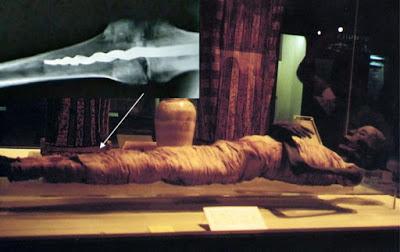 Медицинская загадка: штифт современного типа в ноге мумии