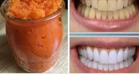 Это то, что вы должны делать с морковью для естественного отбеливания зубов дома!